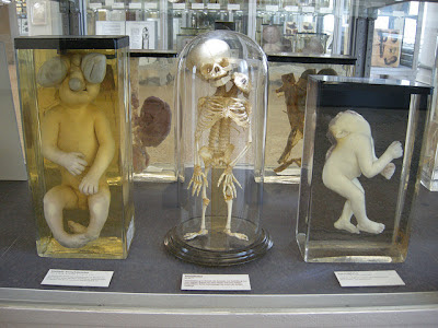 at the Charite Museum, Berlin.  disgusting.